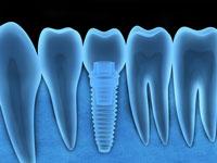 סוגי השתלות שיניים